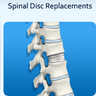 Spinal Disk Replacements- Peak Orthopedics & Spine